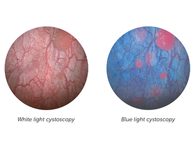 Image of the use of blue light cystoscopy.