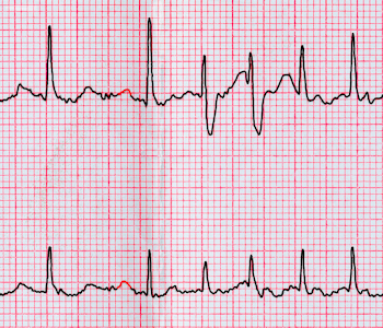 The Causes and Consequences of AFib